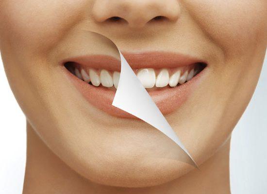 طريقة تبييض الأسنان بالبيكربوناتو