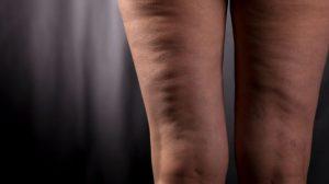 اسباب السيلوليت و علاجه بطرق بسيطة