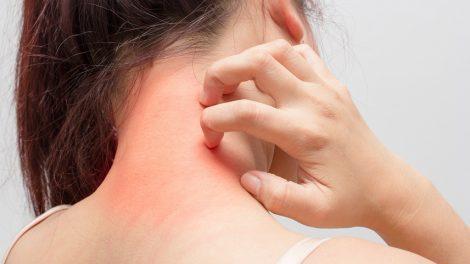 4 مكونات طبيعية تساعدك على القضاء على الناموس نهائيا